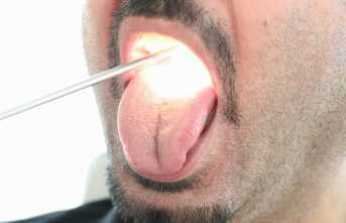 Geçmeyen ağız kokusu 'dil kanseri' belirtisi olabilir